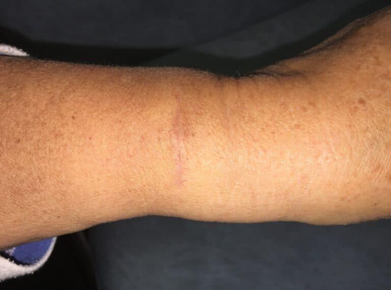 deQ-scar
