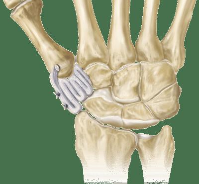hand_and_wrist_tenodesis_0-large